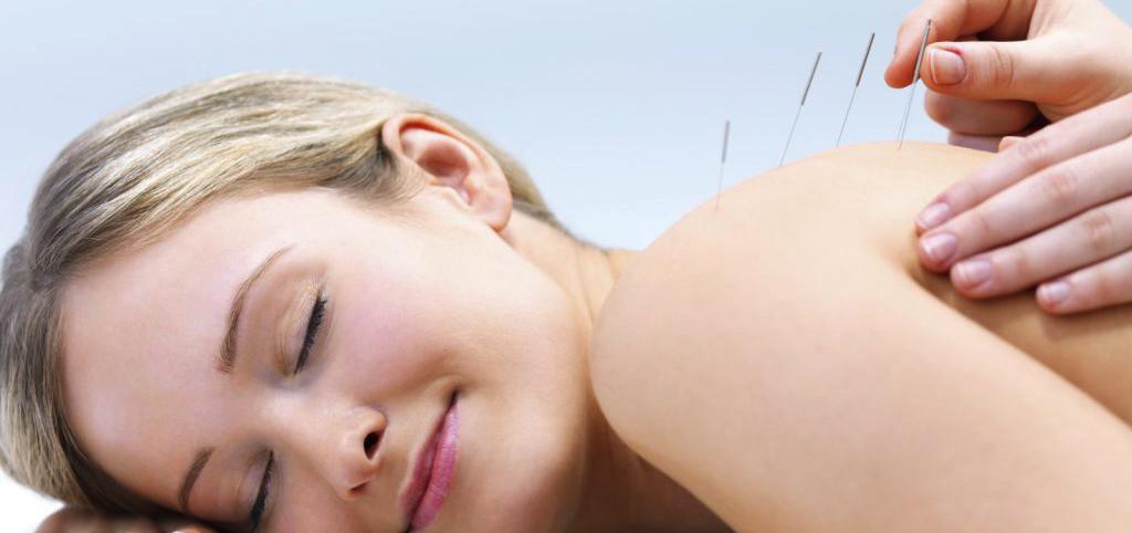 Acupunctuur A de heer